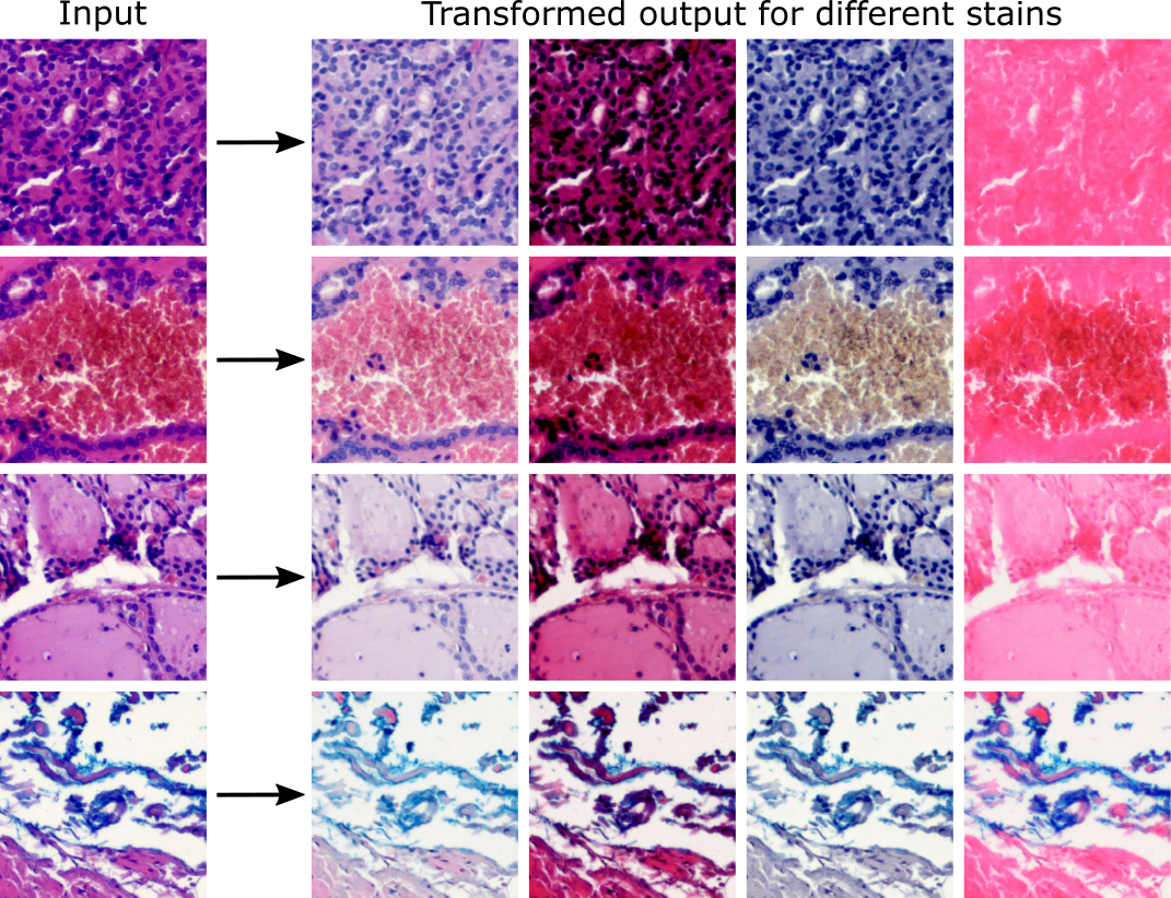 stain_normalization_example